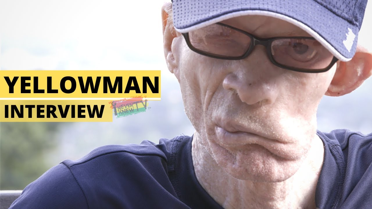 """From Scorned Orphan to King of Dancehall"" Yellowman Interview"