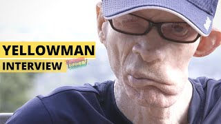 "Yellowman Interview Pt.1 ""From Scorned Orphan to King of Dancehall"""
