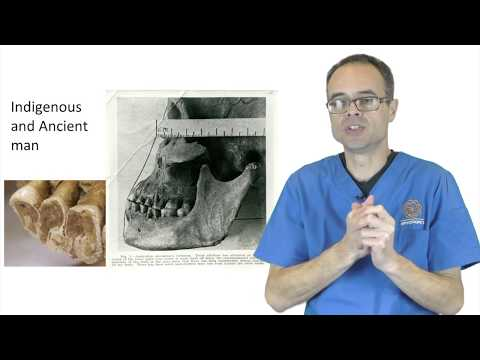 The Cause And Cure Of Bruxism And Clenching By Dr Mike Mew