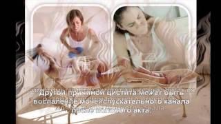 видео 5 НОК и лечение цистита