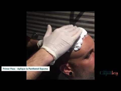 Opresión en la cabeza después del trasplante de cabello
