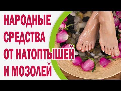 Все способы борьбы с натоптышами на ногах