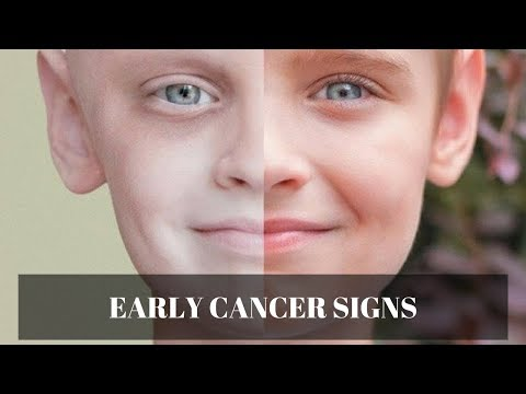 Dont Ignore These Early Signs And Symptoms Of Cancer