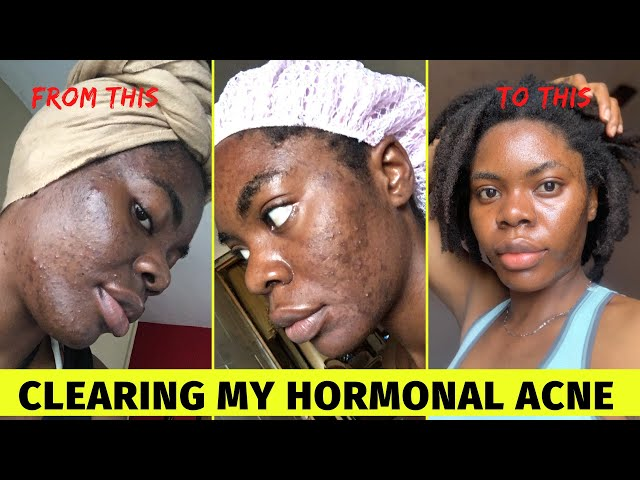 My Skincare Routine for Pimples ACNE-PRONE Oily Skin| Fade Hyperpigmentation on Dark Skin