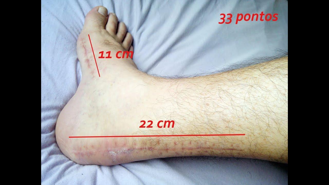 pés ficam roxos em pé após uma cirurgia no tornozelo