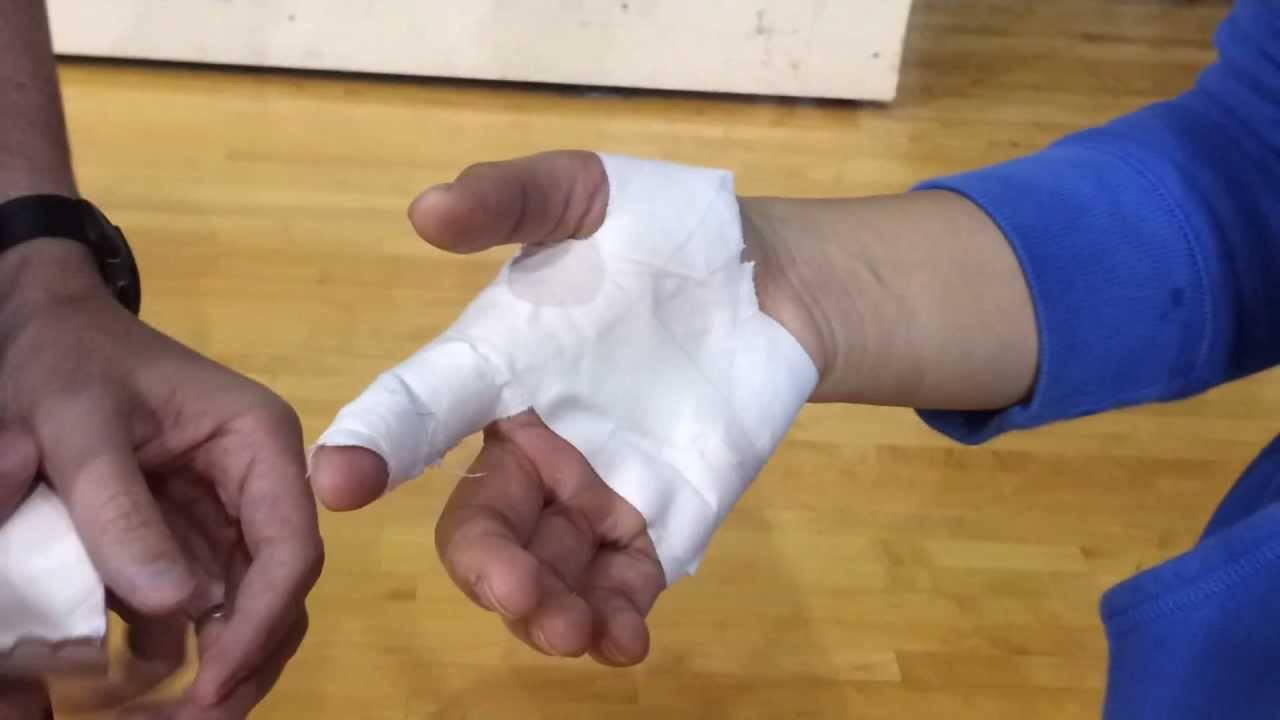 how to tell if your finger is broken or sprained