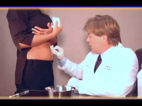 Mesotherapy - Liposuction Alternative - Ultimate Image - Tampa / Clearwater