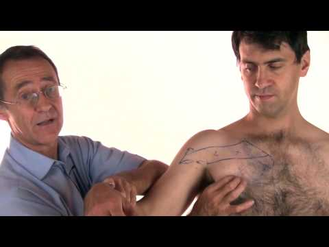 Trigger Point Therapy - Pectoralis Major