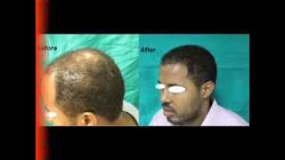 Hair Transplant Before & After Surgery in Delhi India Thumbnail