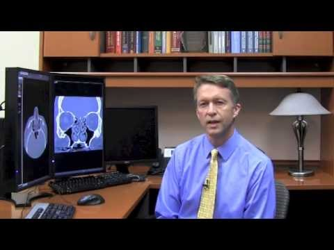 What different types of sinuses are there? - Dr. Greg Reuter
