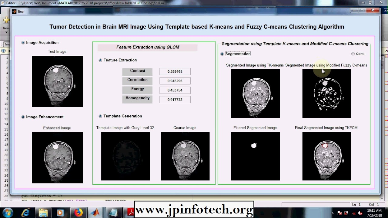 Tumor Detection in Brain MRI Image Using Template based K-means and Fuzzy  C-means Clustering