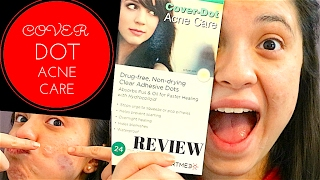 ACNE COVER DOT REVIEW :: ACNE UPDATE