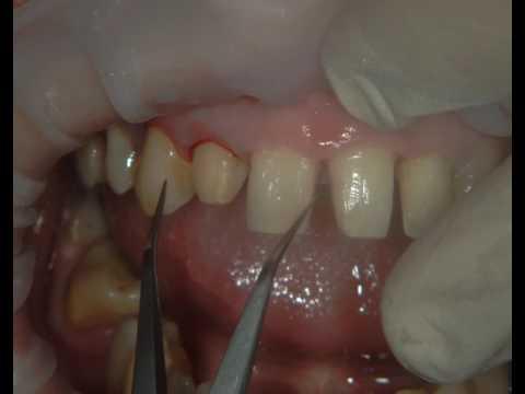 Исправление скученности зубов с помощью композитной реставрации.