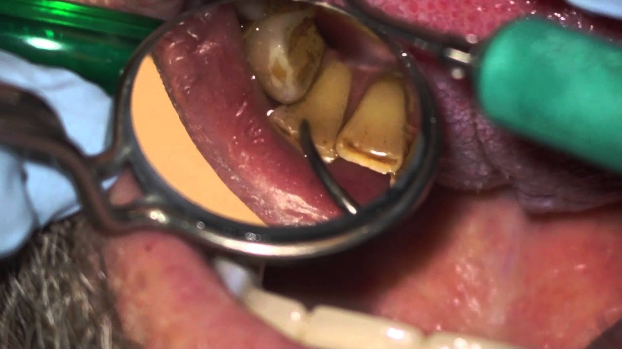 How To Remove Coffee Stains >> Ultrasonic teeth cleaning - YouTube