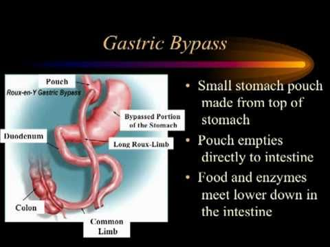 Introduction To Bariatric Surgery