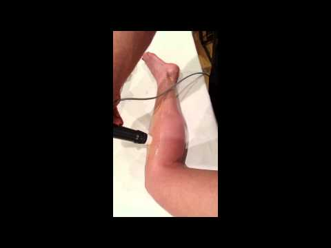 Shockwave to the Peroneal muscles (Enraf Nonius 811)- treatment for 'shin splint' pain