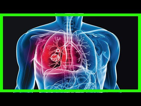 Delhi: doctors notice sharp rise in lung cancer among non-smokers|Breaking News Today
