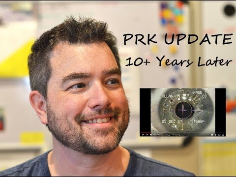 PRK Laser Eye Surgery Review - 10 Years Later