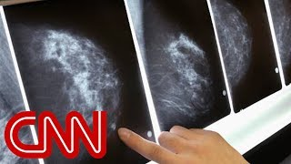 Groundbreaking study says some breast cancer patients may not need chemo