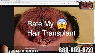 The Bald Truth-Friday-August 10th, 2018-Rate My Hair Transplant-Tricopigmentation