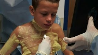 Gambar cover Dearborn Heights boy badly burned during YouTube 'challenge'