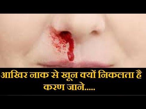 नाक से खून निकलने के करण  को जाने ..