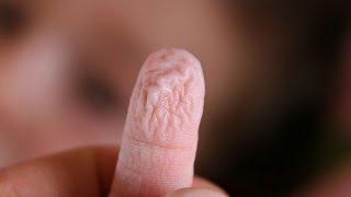 Wrinkled Skin Science