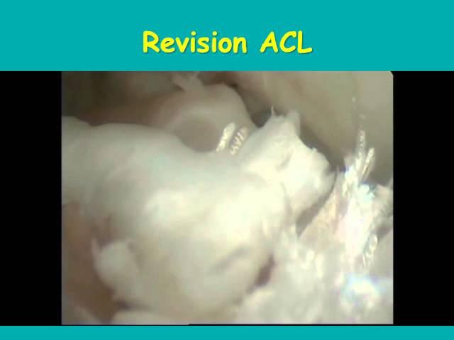 Αρθροσκοπικά ευρήματα σε ρήξεις συνδέσμων γόνατος - Δρ. N. Ροϊδης