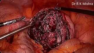 Laparoscopic Myomectomy for Intramural Big Fibroid Uterus