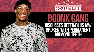 Boonk discusses Getting His Jaw Broken with Permanent Diamond Teeth