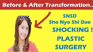 Snsd Im Yoona Plastic Surgery And After