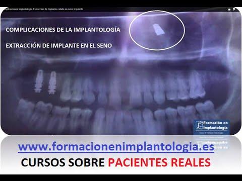 MARRUECOS CON BIO+ l Pablo Vicent de YouTube · Duração:  7 minutos 47 segundos