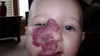 Madison's Hemangioma Journey