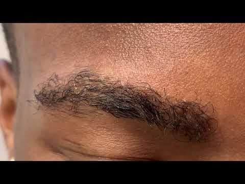 Dallas 5 Month Early African American Male Eyebrow Transplant Close-Up Result