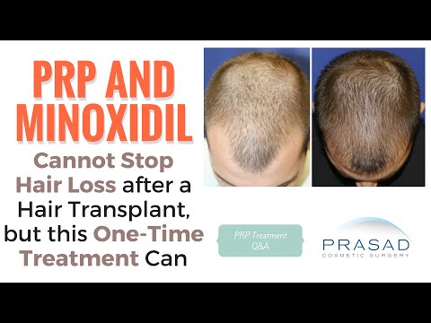 PRP or Minoxidil Cannot Stop Hair Loss After a Hair Transplant, and Better Hair Loss Mangement