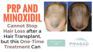 PRP or Minoxidil Cannot Stop Hair Loss After a Hair Transplant, but Another Treatment Can