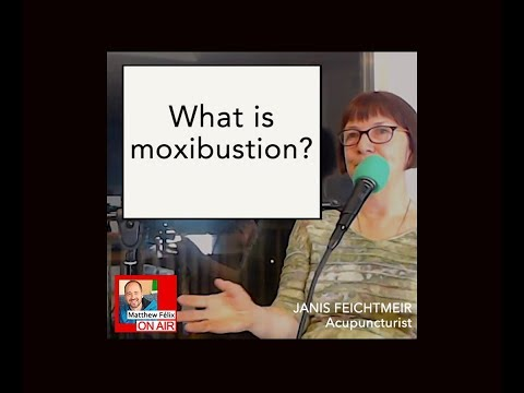 Acupuncture 10: What is moxibustion? (2019)