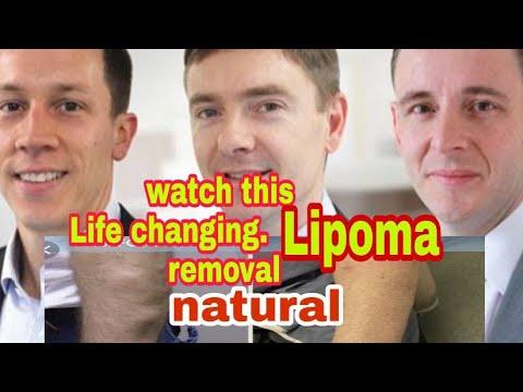 Lipoma   Fatty Bumps   Ayurvedic Treatment   Prof  Dr  Murali
