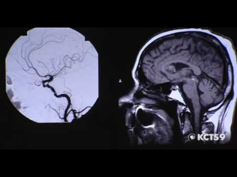 Science Of Stroke Prevention Part 1