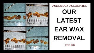OUR LATEST EAR WAX REMOVAL - EP 128