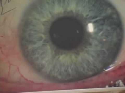 Iridology What The Iris Shows Youtube