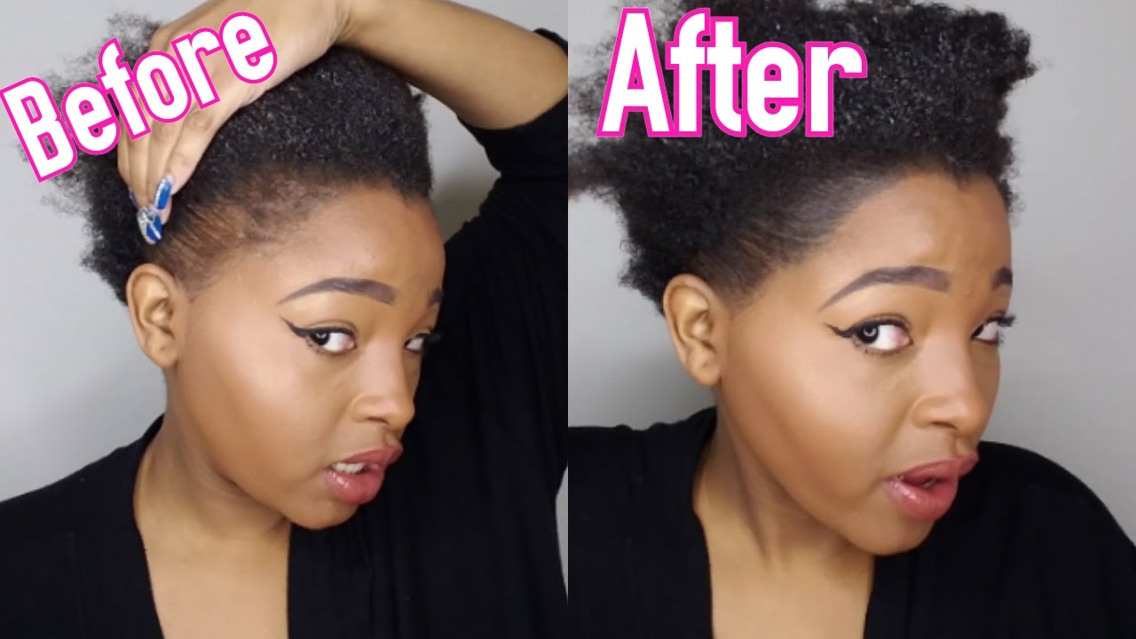 hairstyles thinning edges