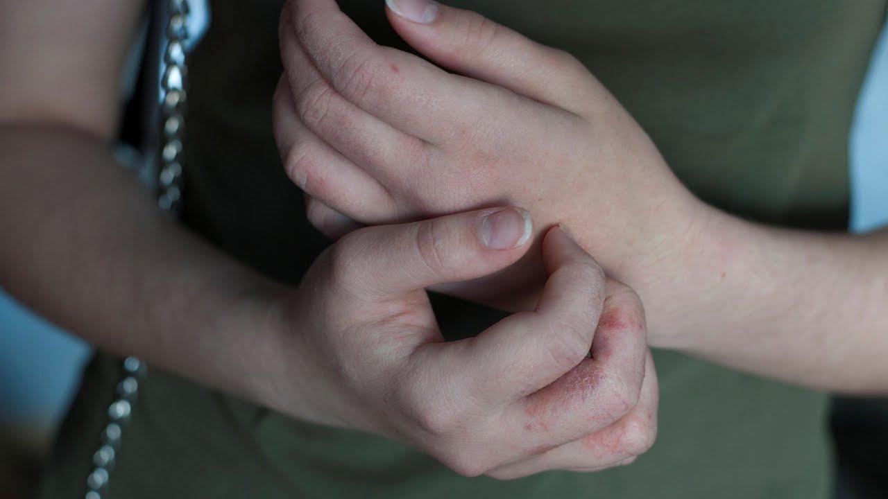 hogyan lehet megszabadulni a kezén lévő vörös foltoktól otthon