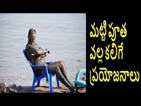 మట్టి పూత వల్ల కలిగే ప్రయోజనాలు , Mud Bath Benefits, Health Benefits of Mud Bath In Telugu, Mud Bath