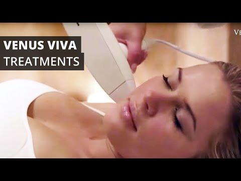 Venus Viva™ Treatments