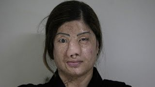 Video Woman Disfigured By Acid By Jealous Friends download MP3, 3GP, MP4, WEBM, AVI, FLV Oktober 2017
