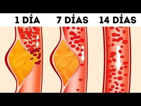 ¿Qué Es La Dieta DASH Y Por Qué Los Médicos La Llaman Una De Las Mejores?
