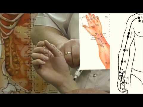 Древняя китайская медицина - Реферат - История медицины