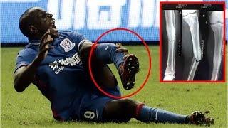 DEMBA BA HORRIFIC INJURY BREAKS LEG FULL VIDEO !!! Demba Ba Horror Injury.
