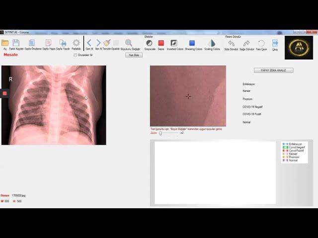 SETINT AI - Corona Tele Radyoloji - TELERADIOLOGY LUNG ARTIFICIAL INTELLIGENCE
